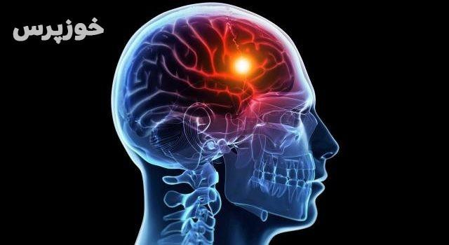 چگونه یک سکته مغزی را تشخیص دهیم؟